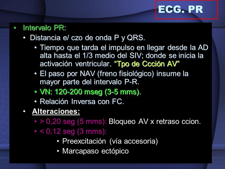 ECG. PR Intervalo PR: Distancia e/ czo de onda P y QRS.