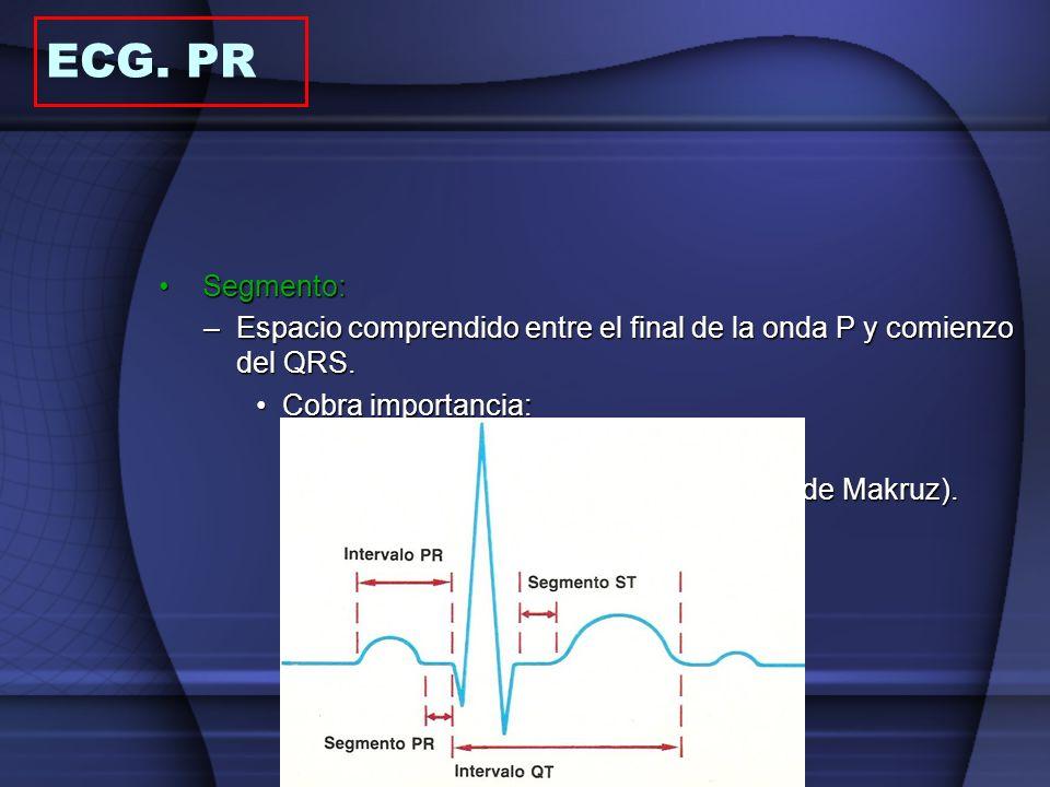 ECG. PR Segmento: Espacio comprendido entre el final de la onda P y comienzo del QRS. Cobra importancia: