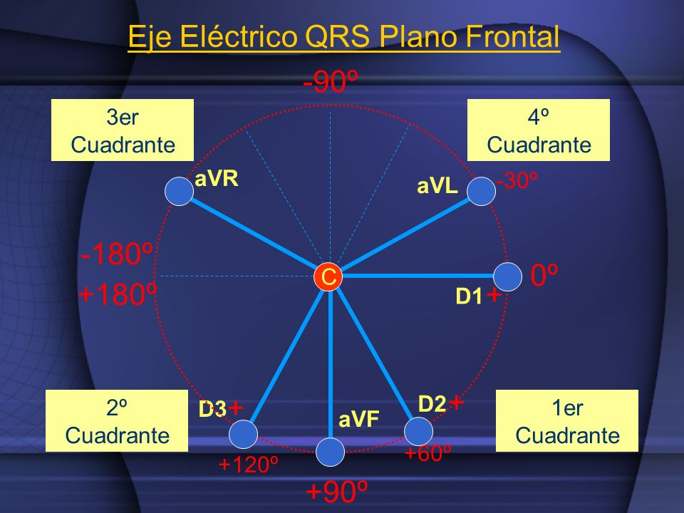 Eje Eléctrico QRS Plano Frontal