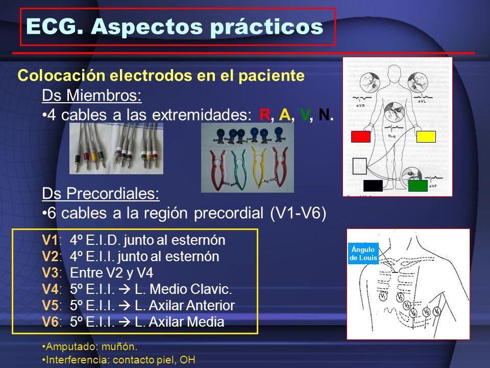 ECG. Aspectos prácticos