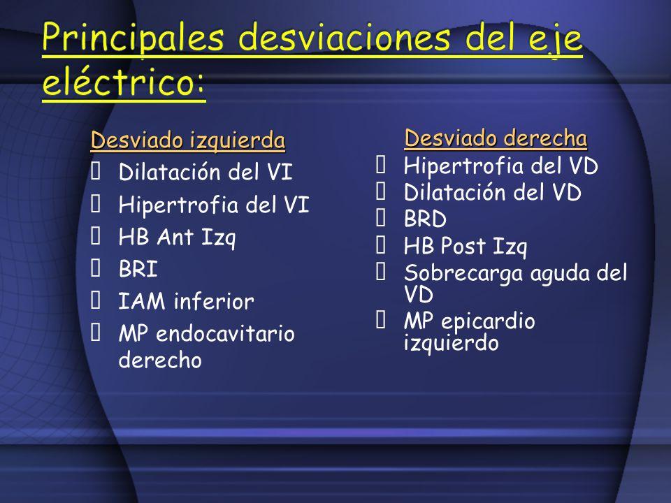 Principales desviaciones del eje eléctrico: