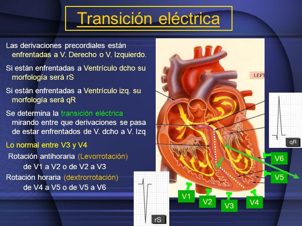 Transición eléctrica Las derivaciones precordiales están enfrentadas a V. Derecho o V. Izquierdo.