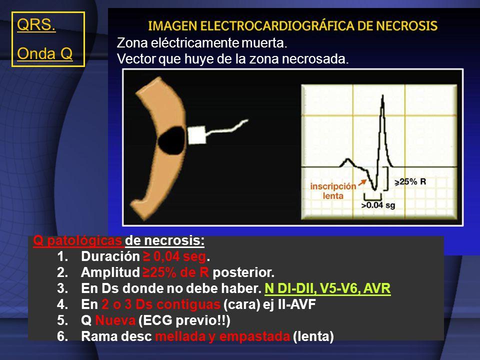 QRS. Onda Q Zona eléctricamente muerta.