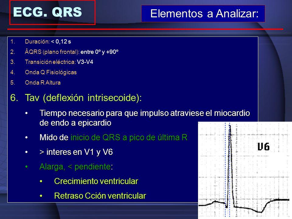 ECG. QRS Elementos a Analizar: Tav (deflexión intrisecoide):