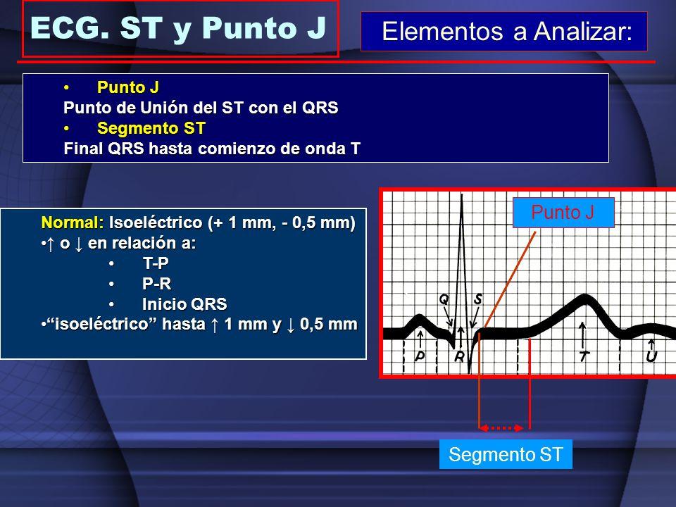 ECG. ST y Punto J Elementos a Analizar: Punto J Segmento ST Punto J