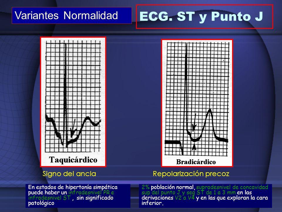 ECG. ST y Punto J Variantes Normalidad Signo del ancla