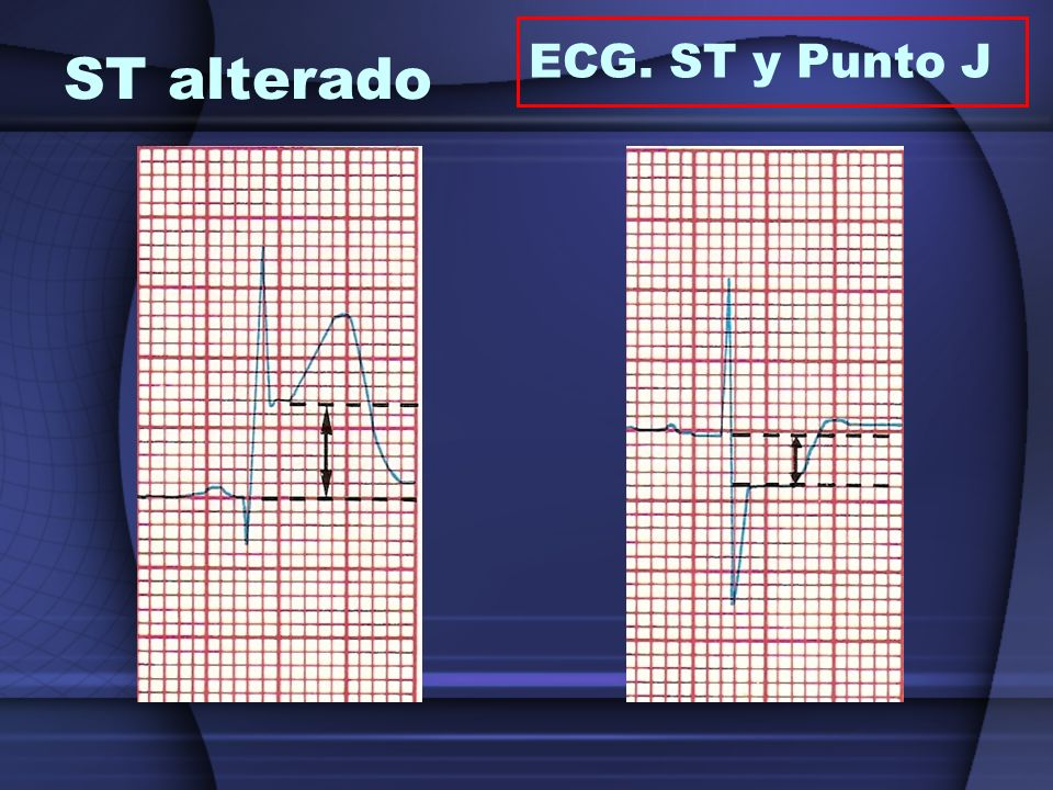 ECG. ST y Punto J ST alterado