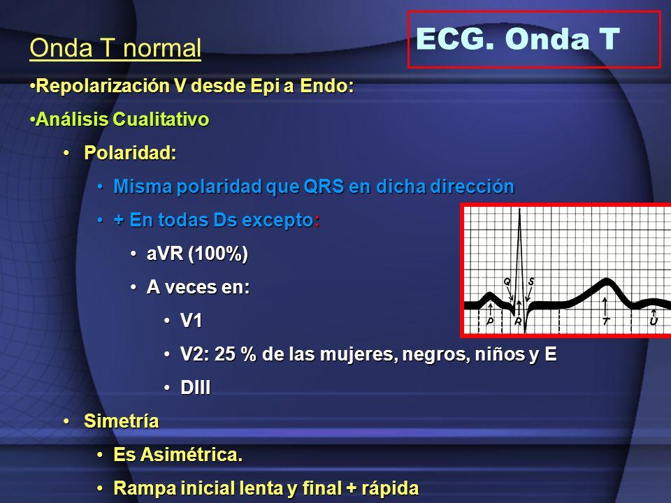 ECG. Onda T Onda T normal Repolarización V desde Epi a Endo: