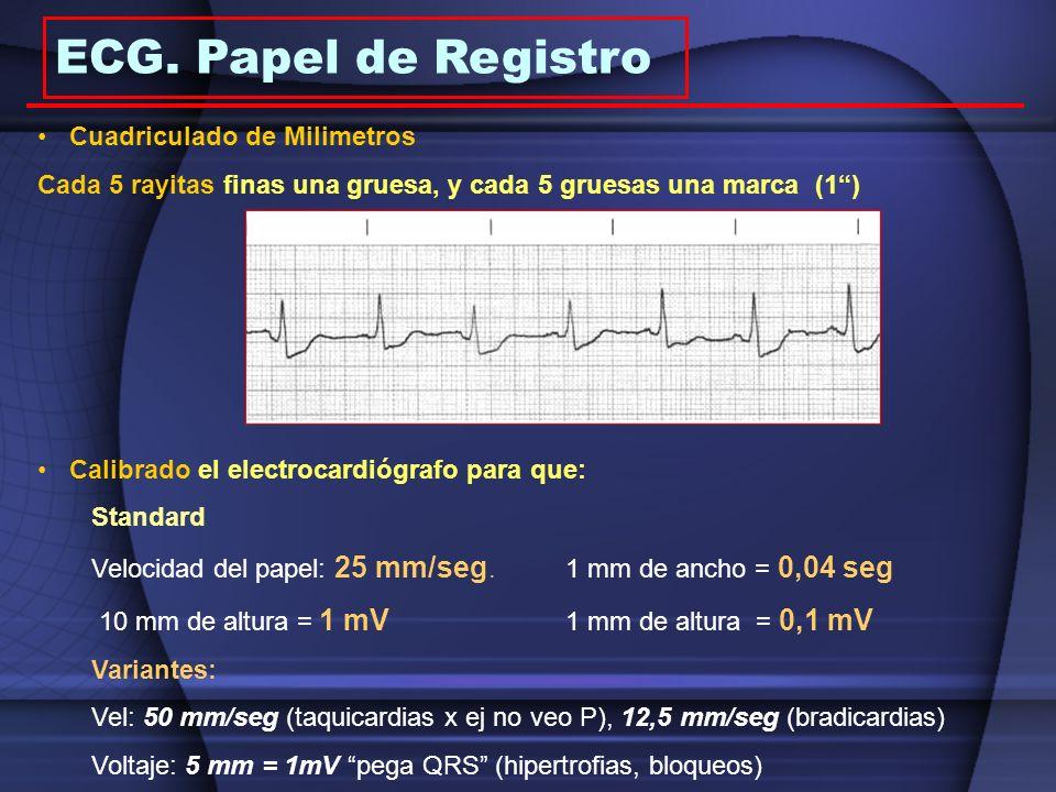 ECG. Papel de Registro Cuadriculado de Milimetros