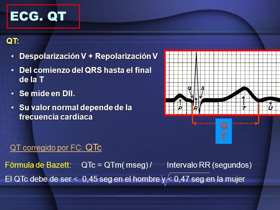 ECG. QT QT: QT Despolarización V + Repolarización V