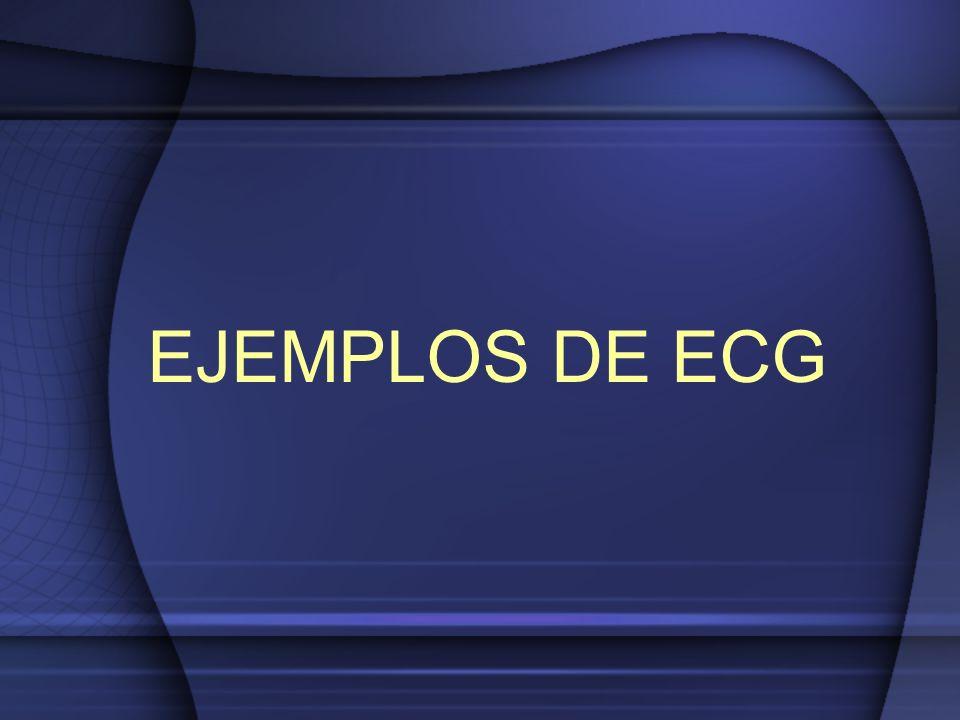 EJEMPLOS DE ECG