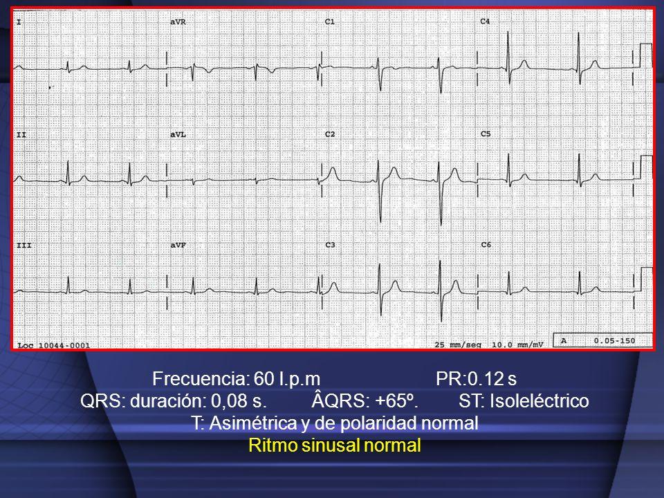 QRS: duración: 0,08 s. ÂQRS: +65º. ST: Isoleléctrico