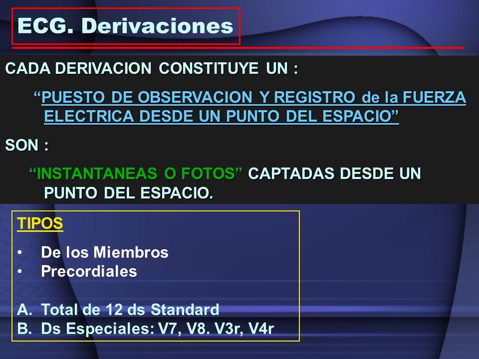 ECG. Derivaciones CADA DERIVACION CONSTITUYE UN :