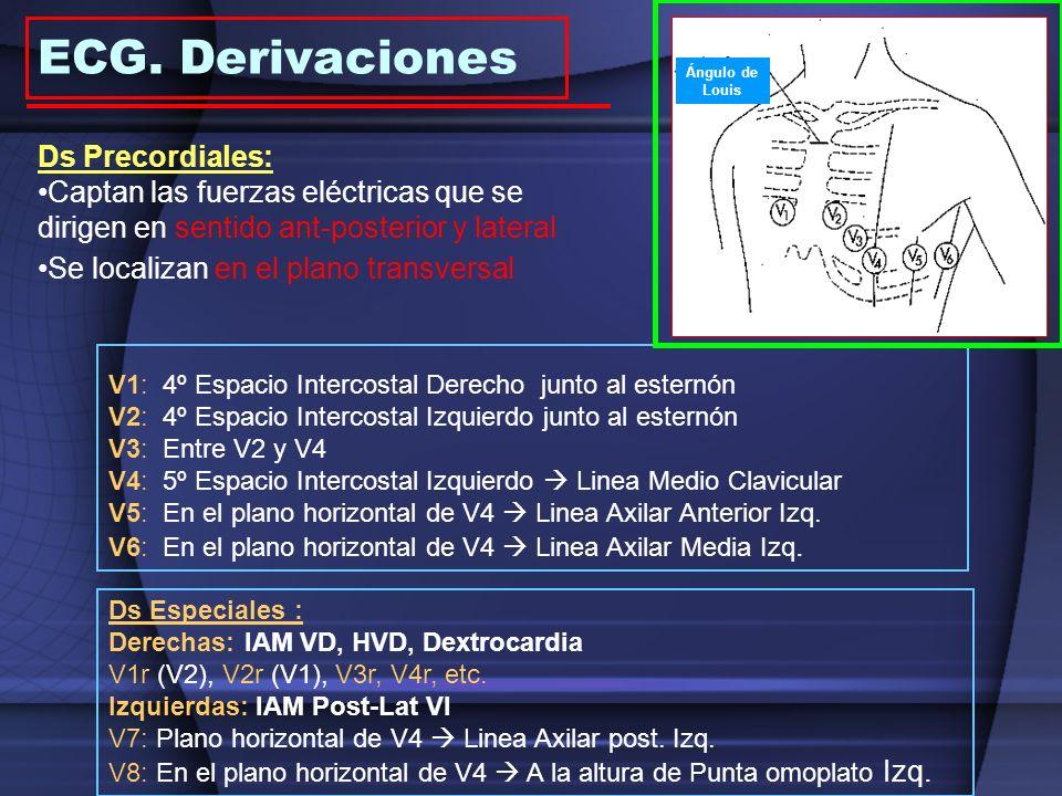 ECG. Derivaciones Ds Precordiales: