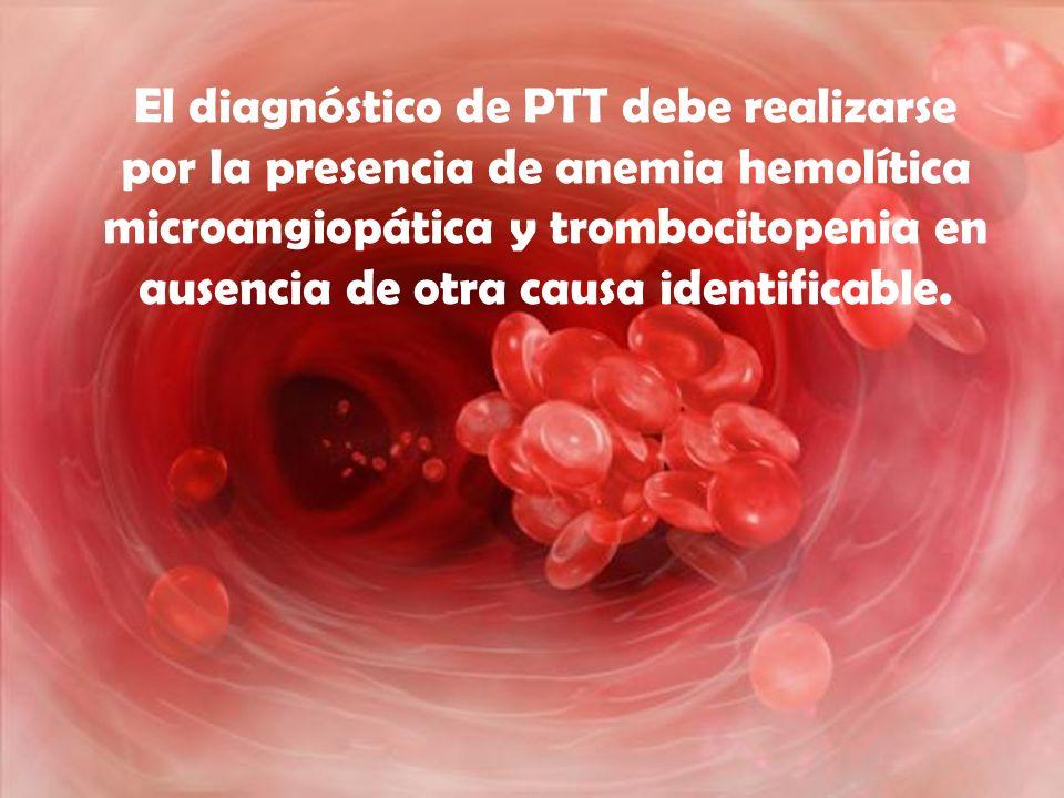 El diagnóstico de PTT debe realizarse por la presencia de anemia hemolítica microangiopática y trombocitopenia en ausencia de otra causa identificable.