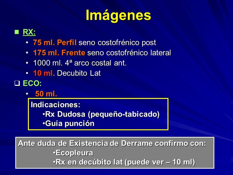 Imágenes RX: 75 ml. Perfil seno costofrénico post