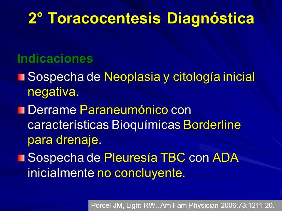 2° Toracocentesis Diagnóstica