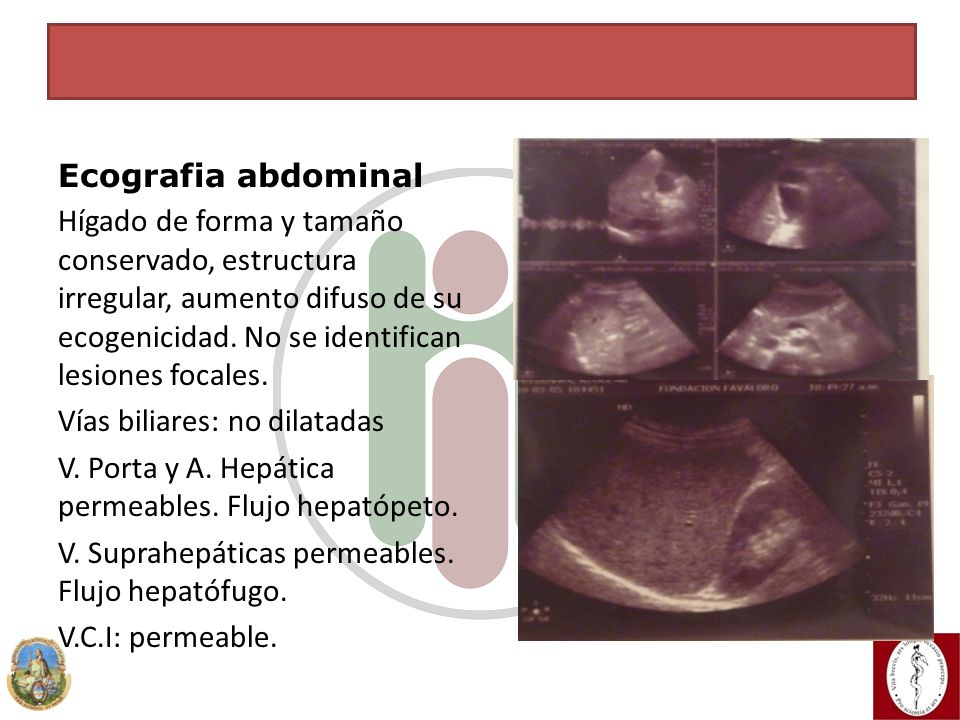 CASO CLÍNICO Ecografia abdominal