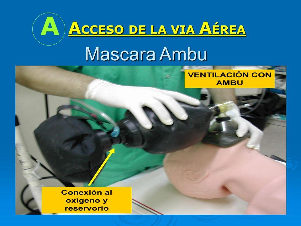 A ACCESO DE LA VIA AÉREA Mascara Ambu