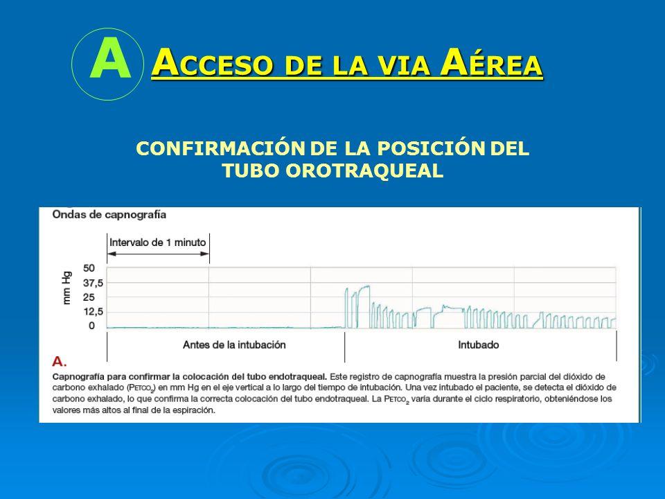 CONFIRMACIÓN DE LA POSICIÓN DEL TUBO OROTRAQUEAL