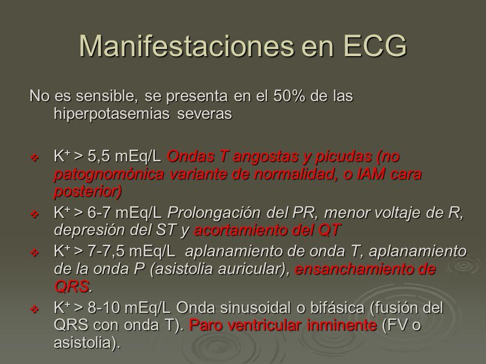 Manifestaciones en ECG