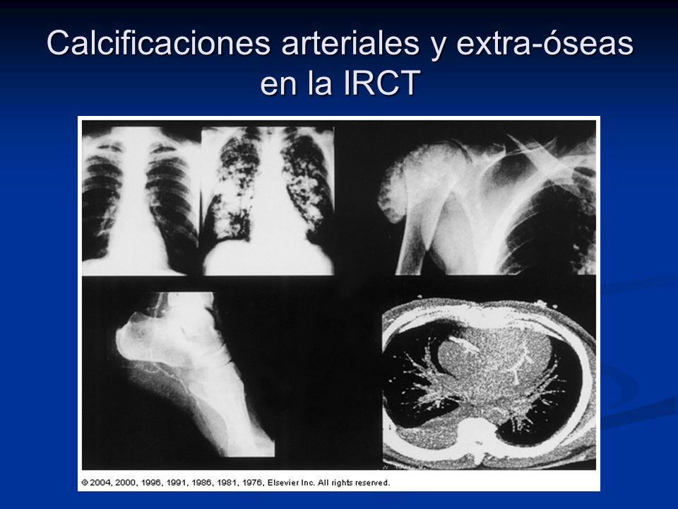 Calcificaciones arteriales y extra-óseas en la IRCT
