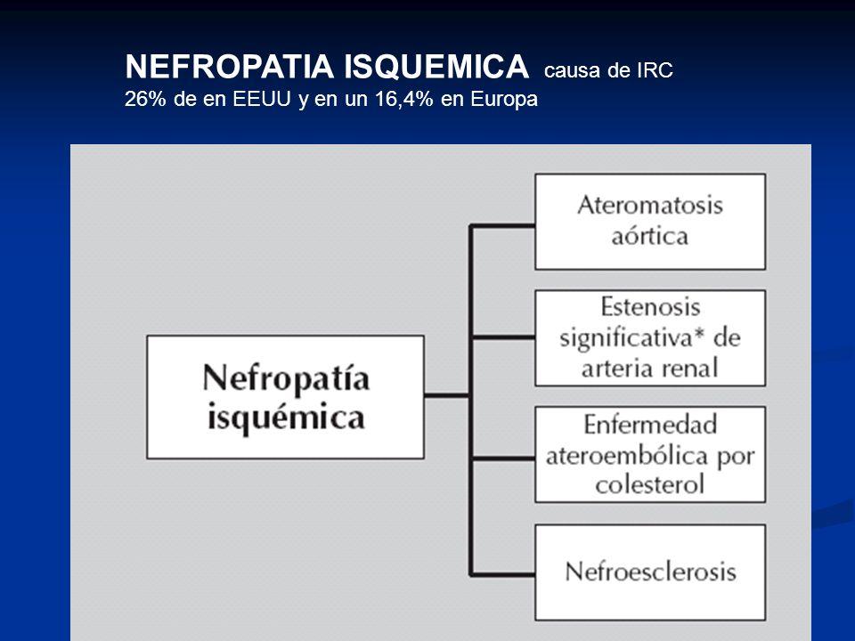 NEFROPATIA ISQUEMICA causa de IRC