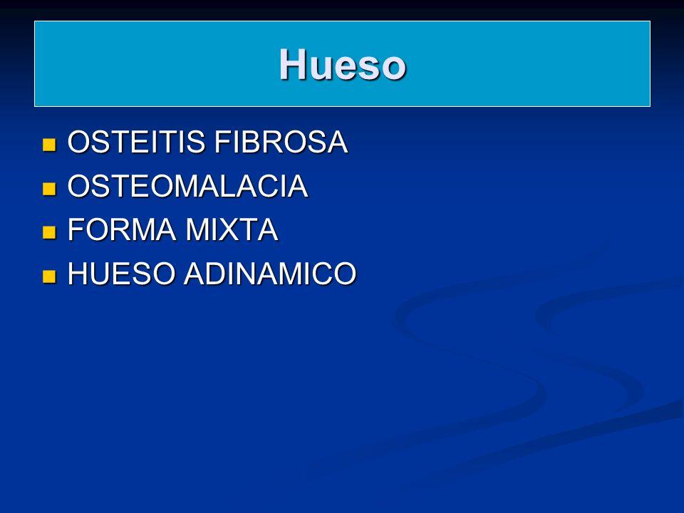 Hueso OSTEITIS FIBROSA OSTEOMALACIA FORMA MIXTA HUESO ADINAMICO