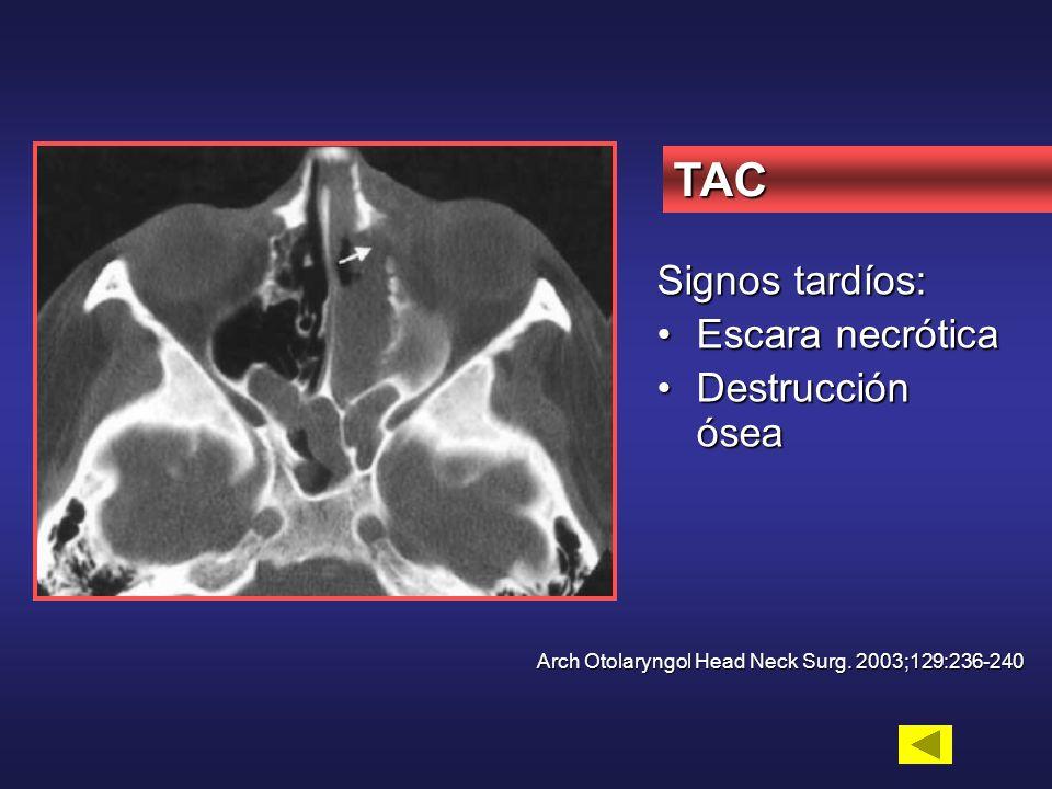 TAC Signos tardíos: Escara necrótica Destrucción ósea