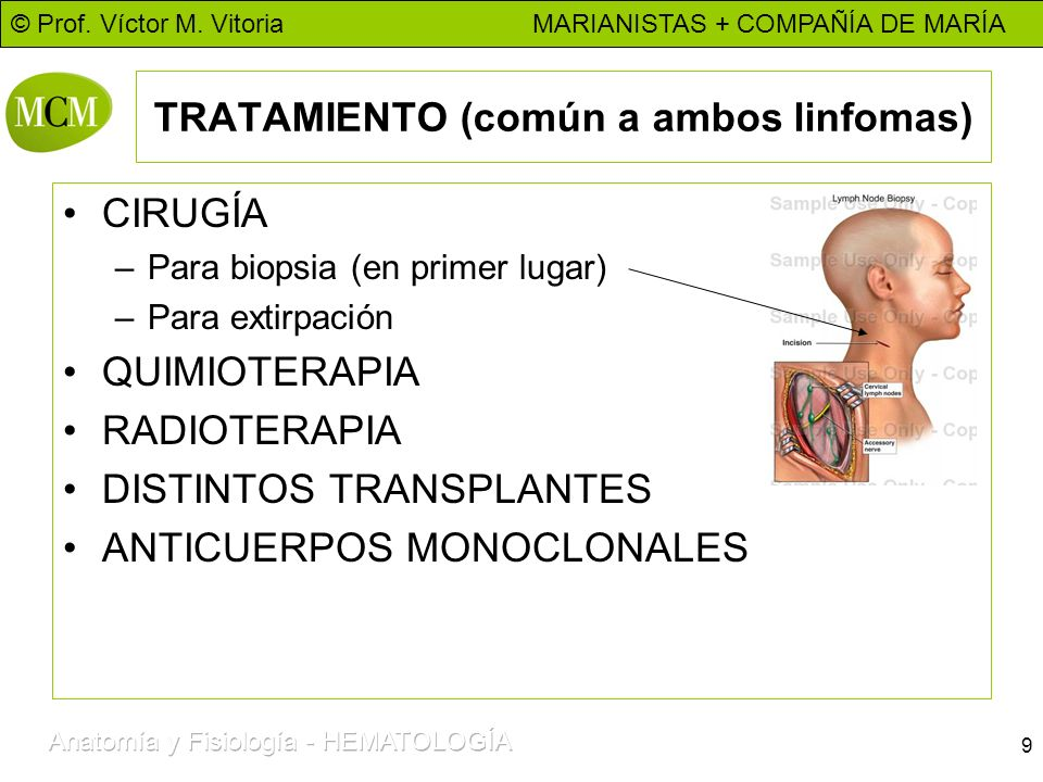 TRATAMIENTO (común a ambos linfomas)
