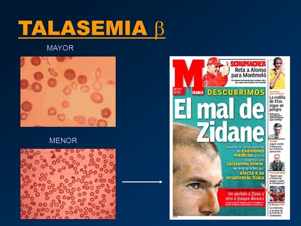 TALASEMIA b MAYOR MENOR