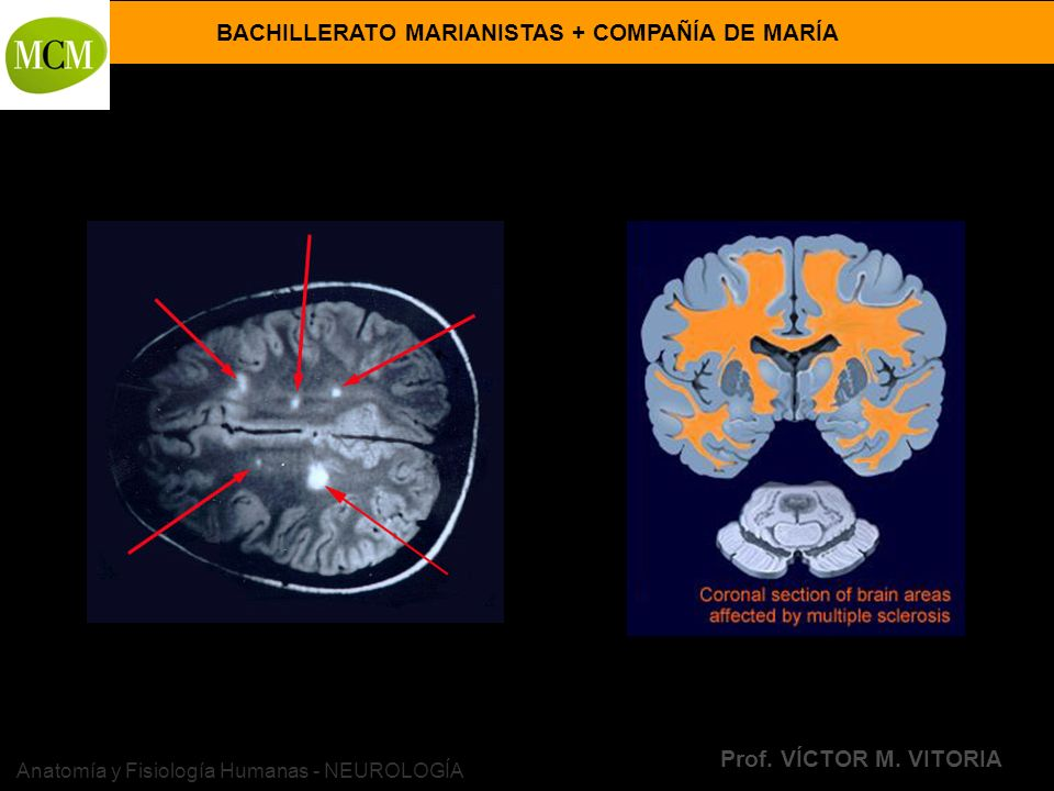 Anatomía y Fisiología Humanas - NEUROLOGÍA