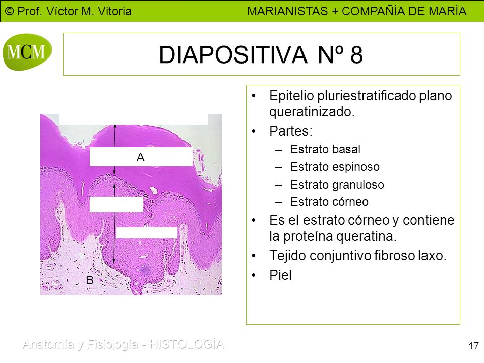 DIAPOSITIVA Nº 8 Epitelio pluriestratificado plano queratinizado.