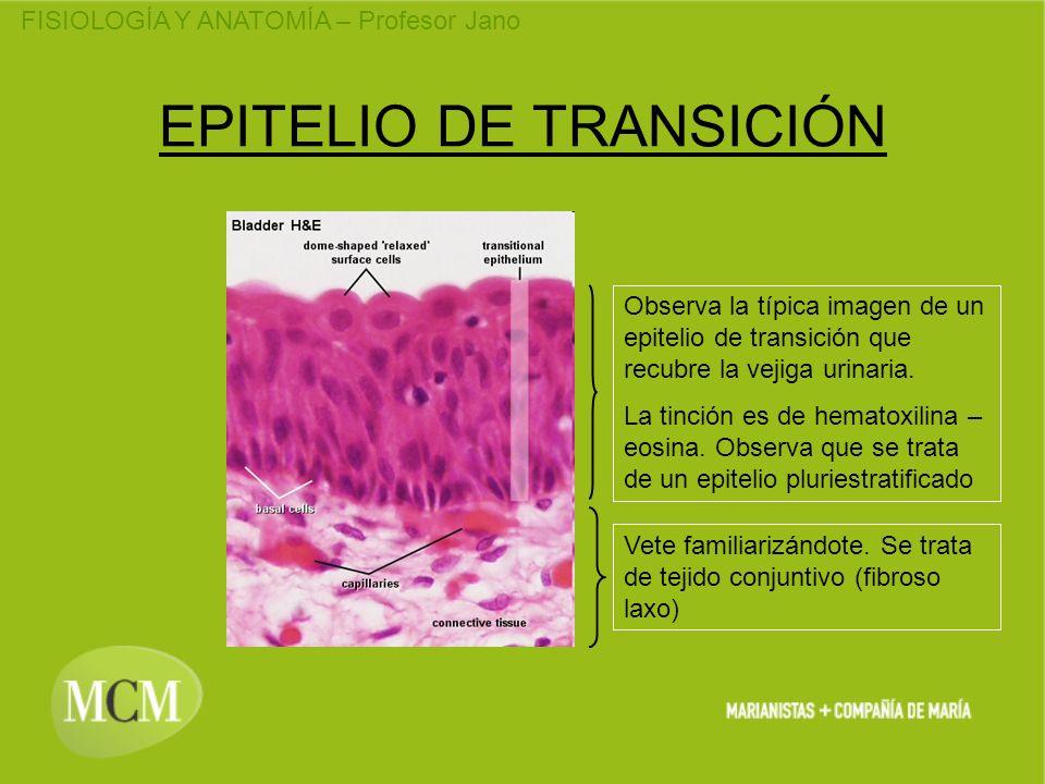 EPITELIO DE TRANSICIÓN