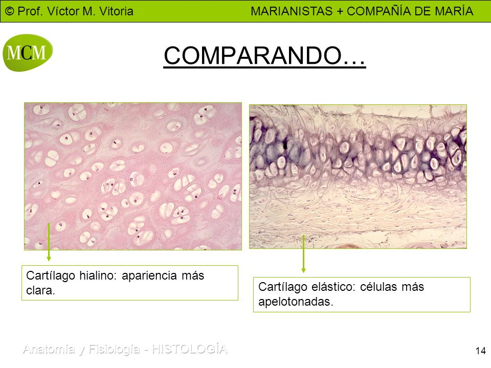 COMPARANDO… Cartílago hialino: apariencia más clara.