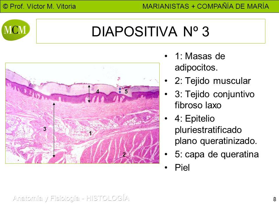 DIAPOSITIVA Nº 3 1: Masas de adipocitos. 2: Tejido muscular