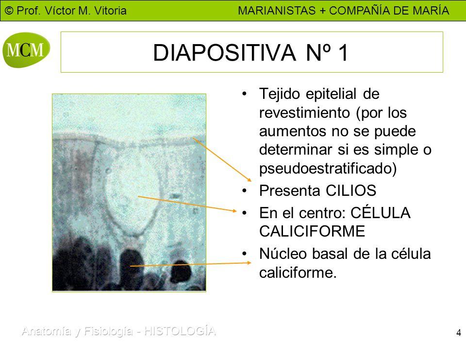 DIAPOSITIVA Nº 1 Tejido epitelial de revestimiento (por los aumentos no se puede determinar si es simple o pseudoestratificado)