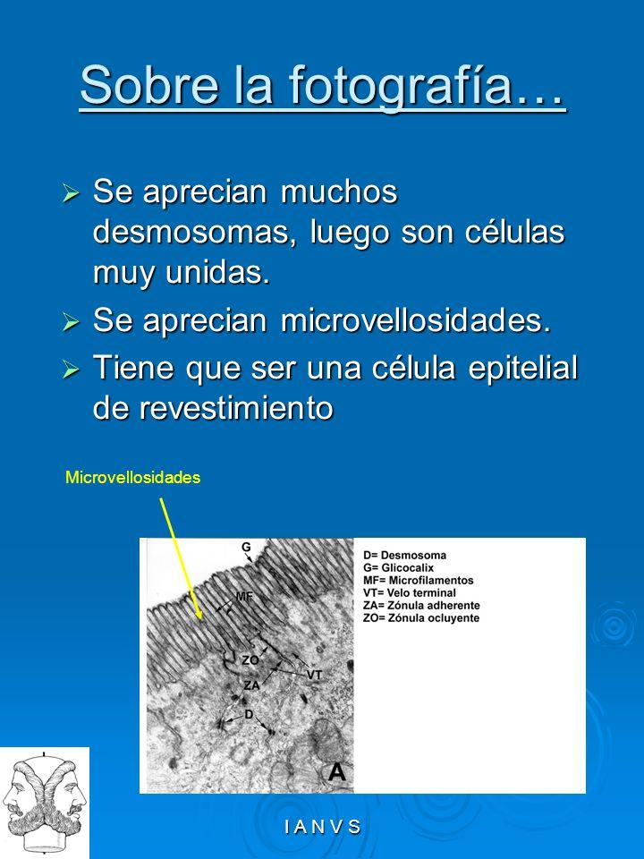 Sobre la fotografía…Se aprecian muchos desmosomas, luego son células muy unidas. Se aprecian microvellosidades.