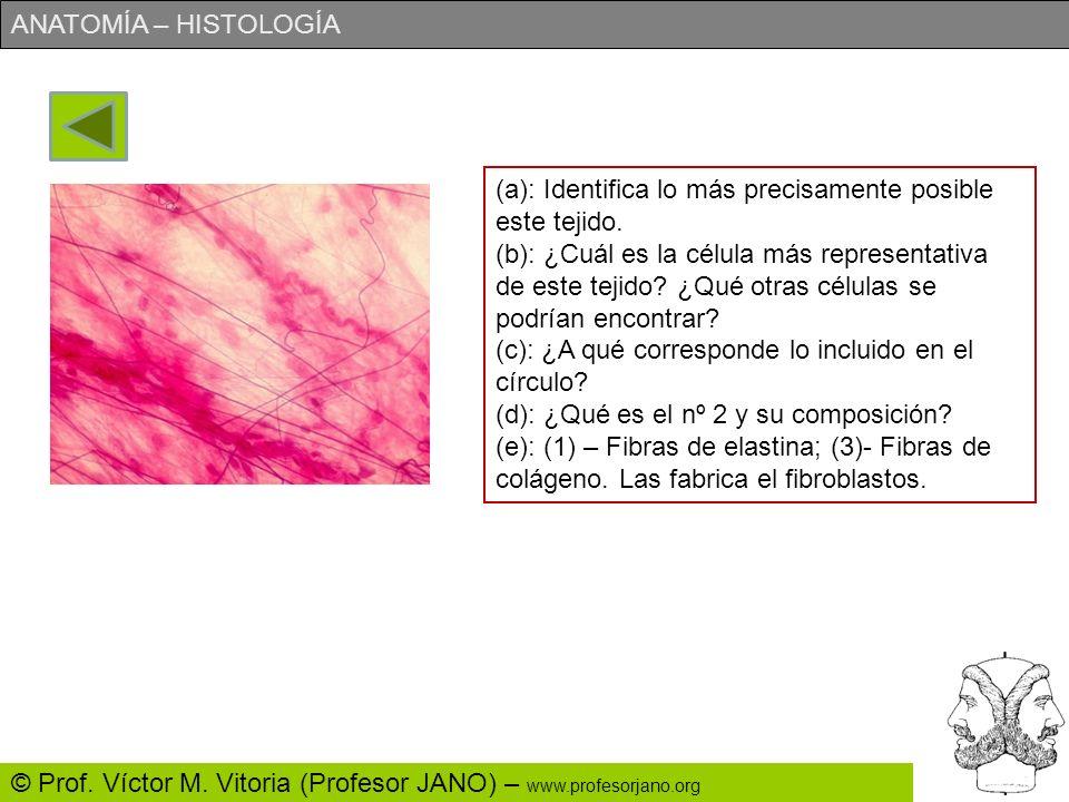 (a): Identifica lo más precisamente posible este tejido.