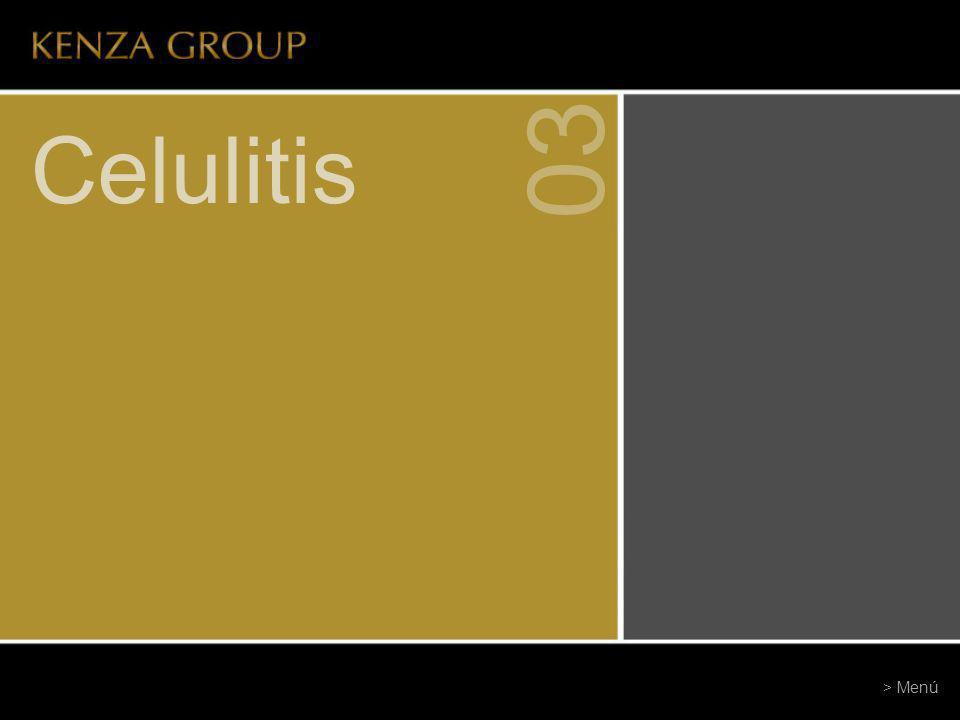 03 Celulitis > Menú