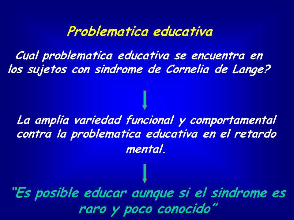 Es posible educar aunque si el sindrome es raro y poco conocido