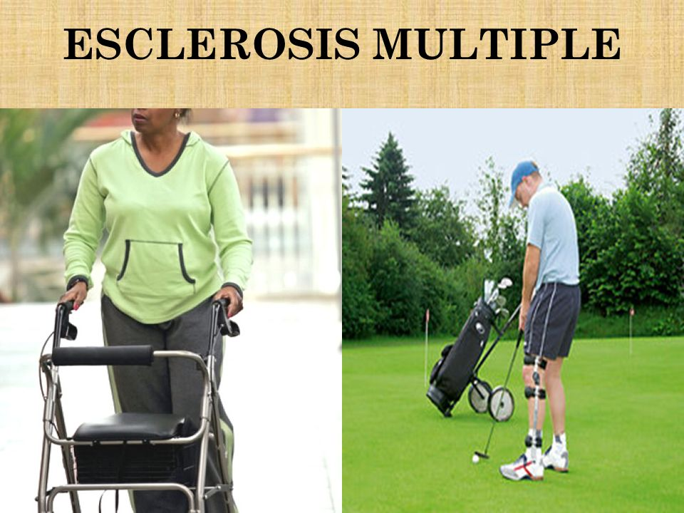 ESCLEROSIS MULTIPLE