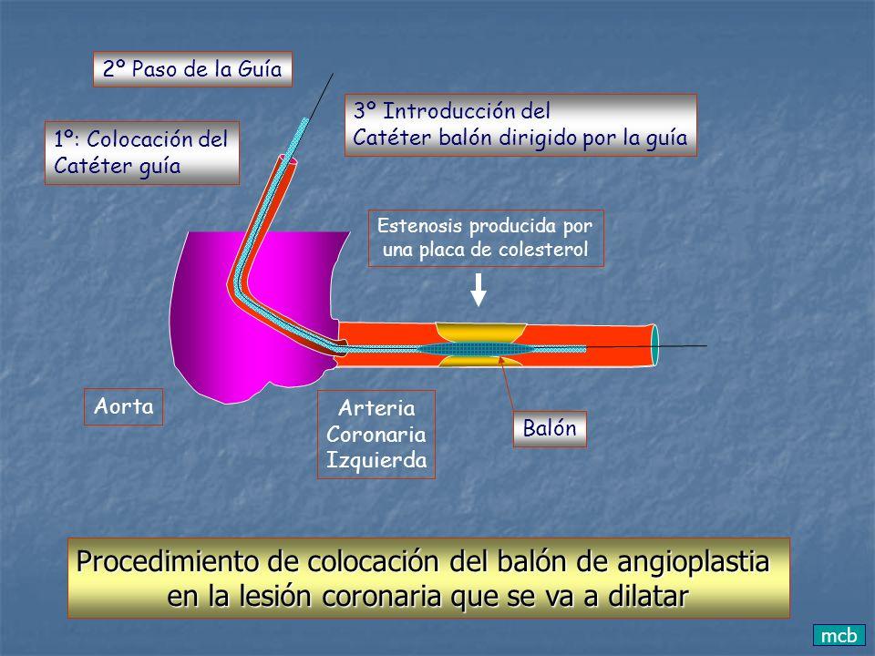 Procedimiento de colocación del balón de angioplastia