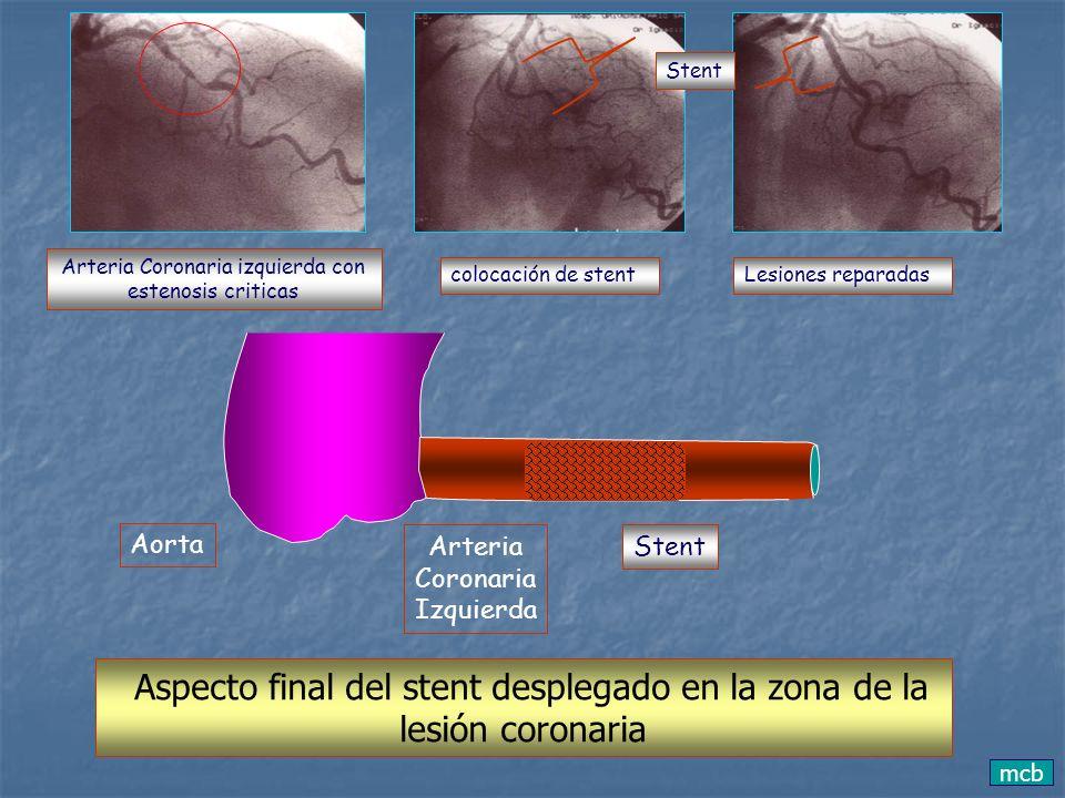 lesión coronaria Aspecto final del stent desplegado en la zona de la