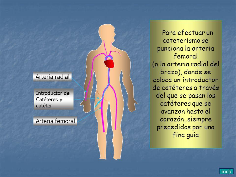 Para efectuar un cateterismo se punciona la arteria femoral