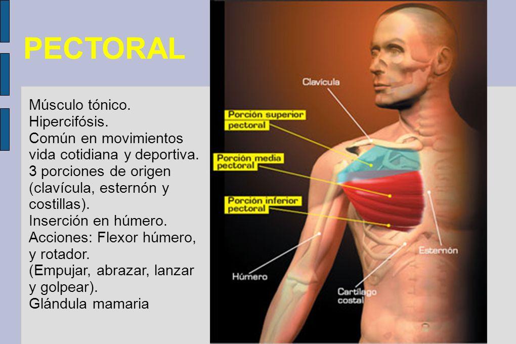 PECTORAL Músculo tónico. Hipercifósis.