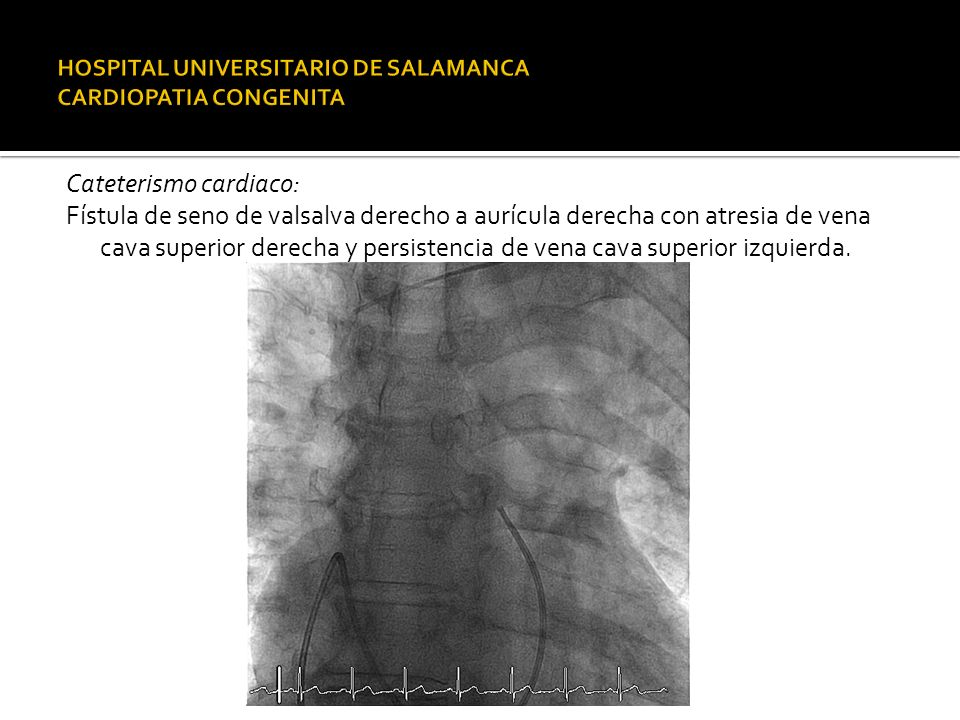 HOSPITAL UNIVERSITARIO DE SALAMANCA CARDIOPATIA CONGENITA