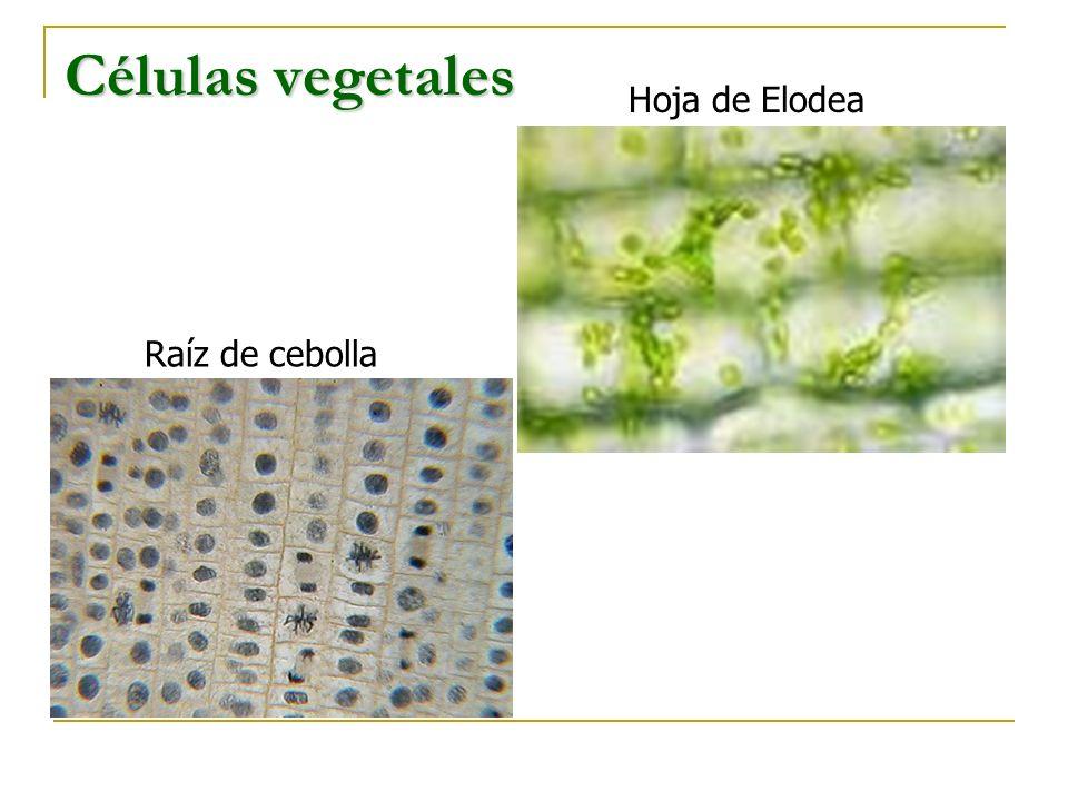 Células vegetales Hoja de Elodea Raíz de cebolla