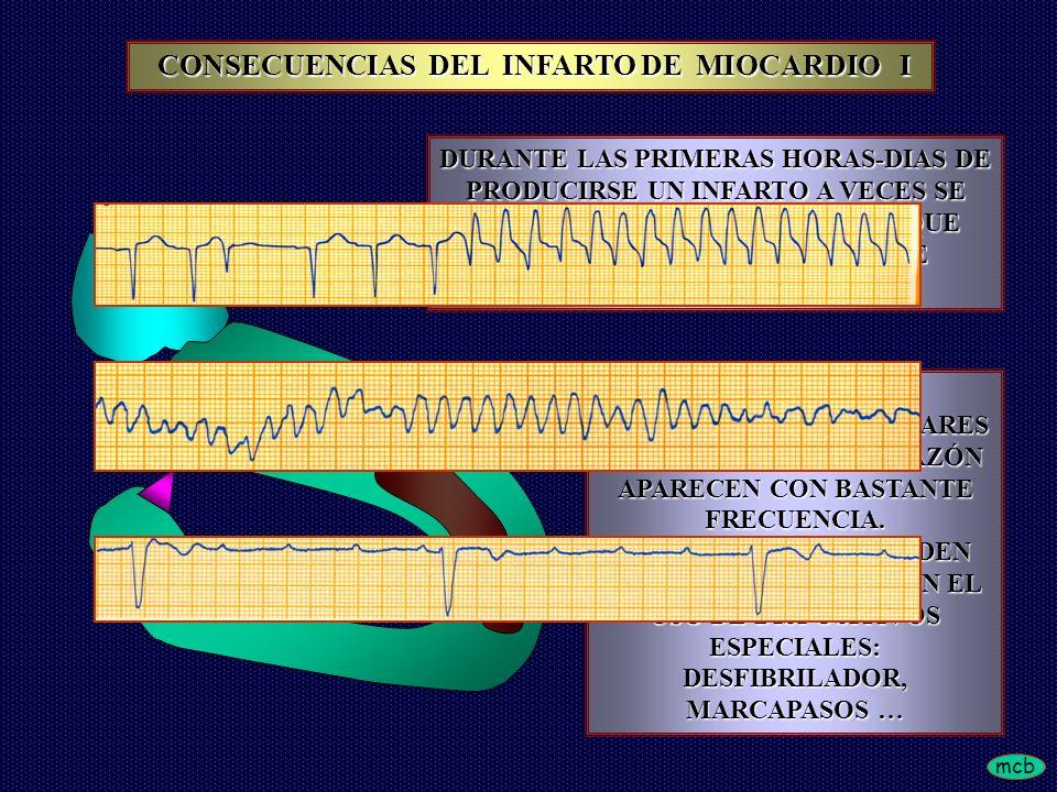 CONSECUENCIAS DEL INFARTO DE MIOCARDIO I