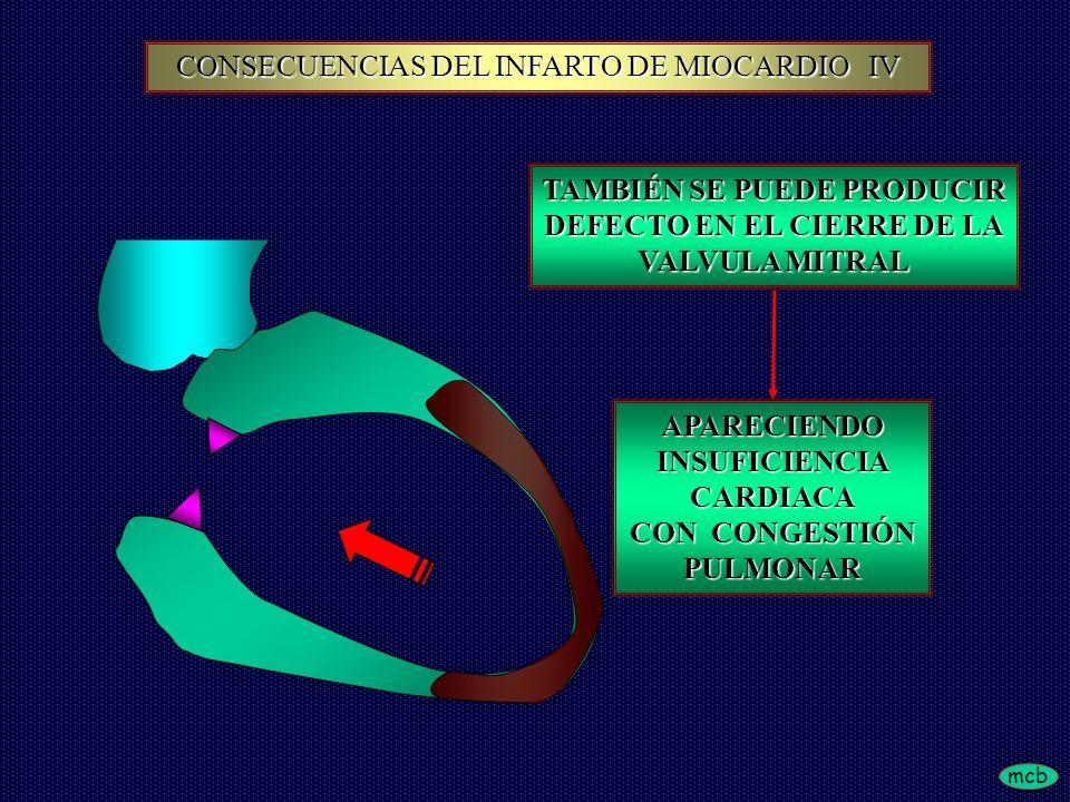 CONSECUENCIAS DEL INFARTO DE MIOCARDIO IV